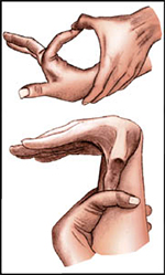 Синдром Марфана пальцы