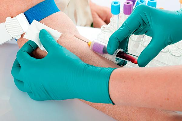 Анализ крови на онкомаркер CA 125