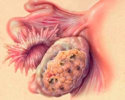 Онкомаркер рака яичника