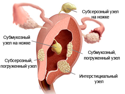 узлы миомы матки