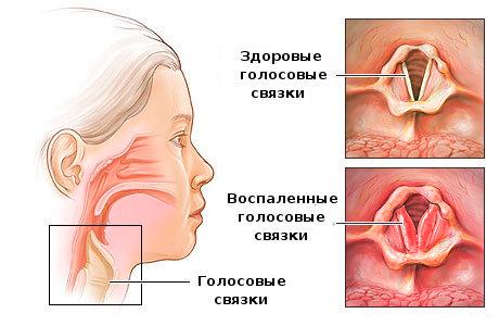 Ларингит лечение