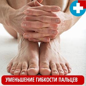 Уменьшение гибкости пальцев