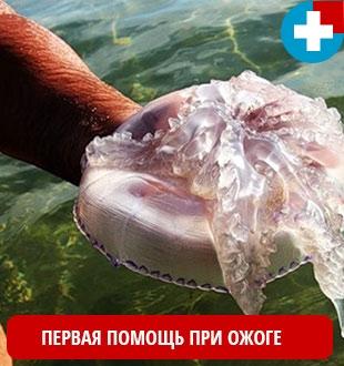Первая помощь человеку при ожоге от медузы