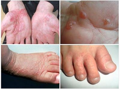 Симптомы дисгидротической экземы на руках и ногах