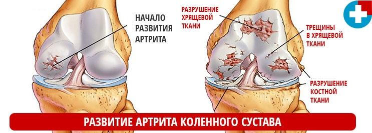 Артрит коленного сустава - причины и симптомы заболевания