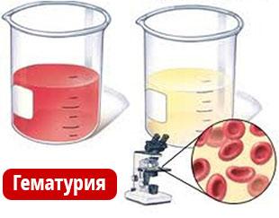 Гематурия- кровь в моче