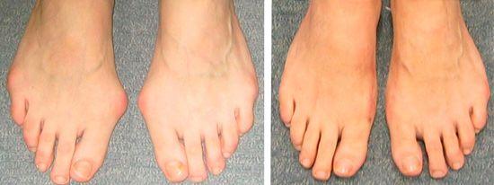 операция косточки на ногах