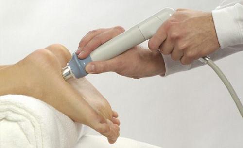 пяточная шпора лечение ультразвуком