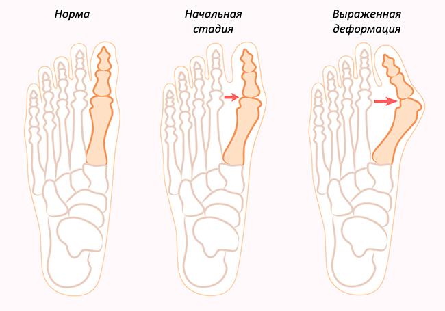 стадии шишки на ногах