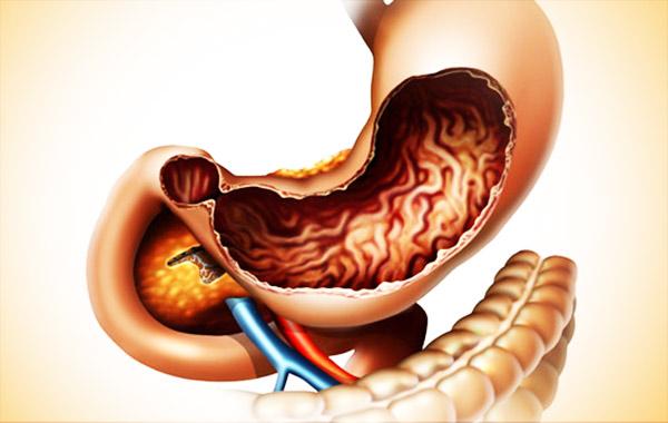 Рисунок желудка человека