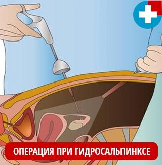 Оперативное лечение гидросальпинкса путем лапороскопии