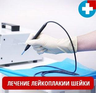 Лечение лейкоплакии шейки матки различными методами