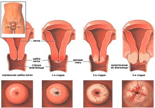 рак шейки матки стадии