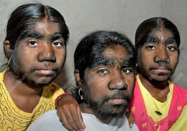 Волосы на теле мужчин в избытке
