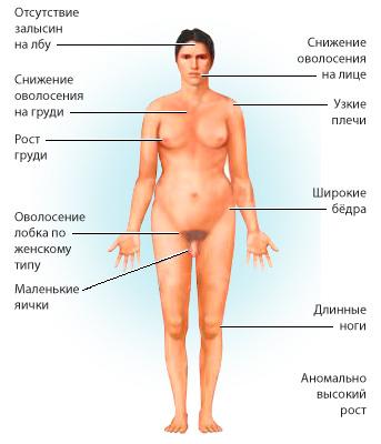 симптомы евнухоидизма