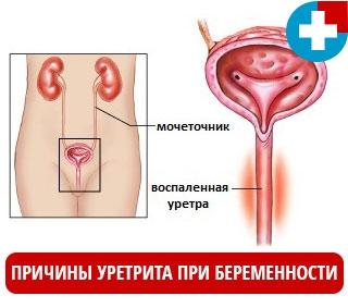 Основные причины уретрита при беременности