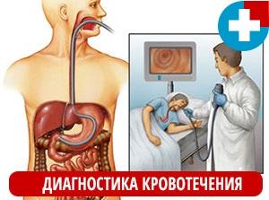 Диагностика желудочного кровотечения