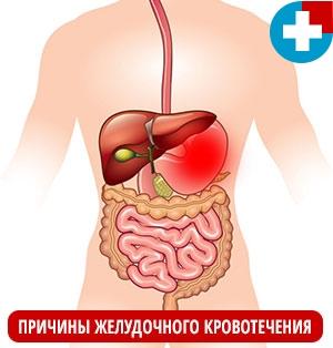 Причины желудочного кровотечения