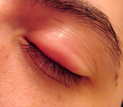 Как снять отек после укуса мошки - Блог мамы-врача