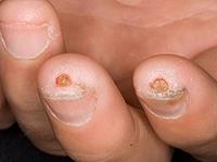Склеродермия на пальцах