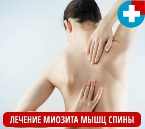 Лечение миозита мышц спины