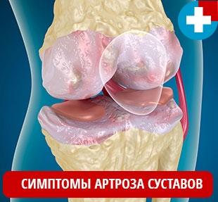 Основные симптомы артроза суставов