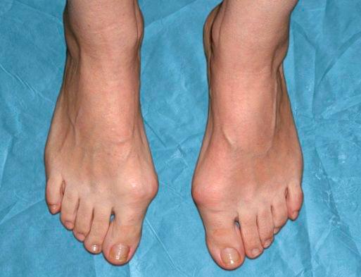 шишки на пальцах при вальгусе
