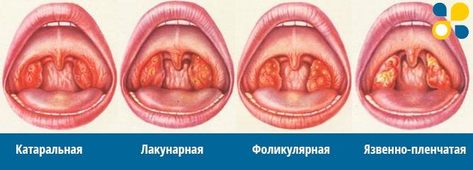 От глубины воспаления миндалин выделяют формы ангины
