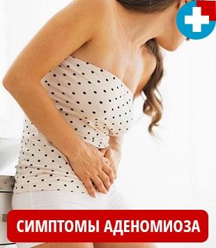 Основные симптомы аденомиоза матки