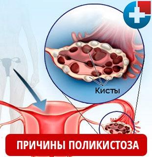 Причины поликистоза яичников