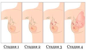 Стадии опухоли груди